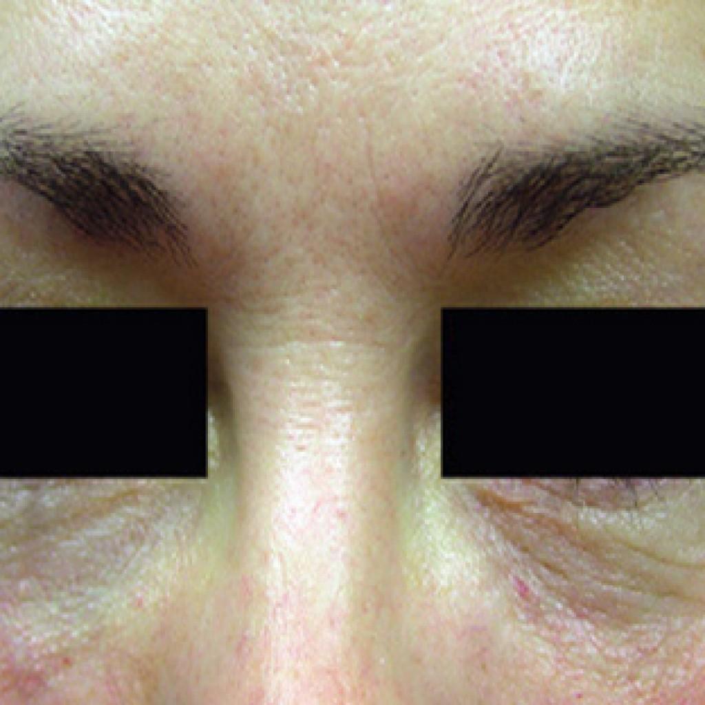 Fillers Hyaluronic Acid Sakka Dermatologist