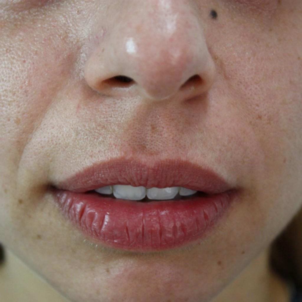 Hyaluronic Mesotherapy Sakka Dermatologist
