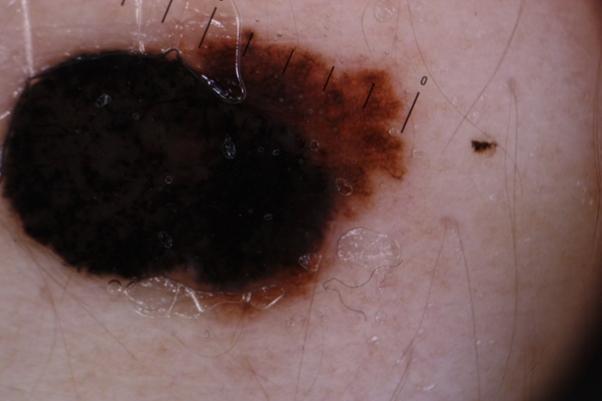 Κακοήθες μελάνωμα- έγινε αφαίρεση και δείγμα αποστάλει για βιοψία