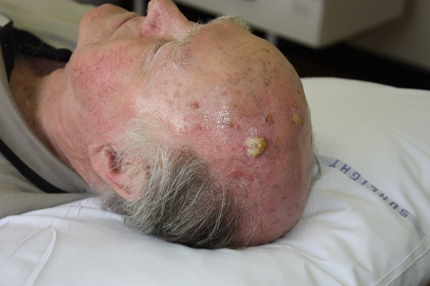 Ακανθοκυτταρικό καρκίνομα- έγινε αφαίρεση και δείγμα αποστάληκε για βιοψία