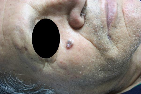 Κακοήθες βασικοκυτταρικό καρκίνομα- έγινε χειρουργική αφαίρεση και συνίσταται παρακολούθηση